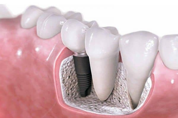 I need to get an implant tooth