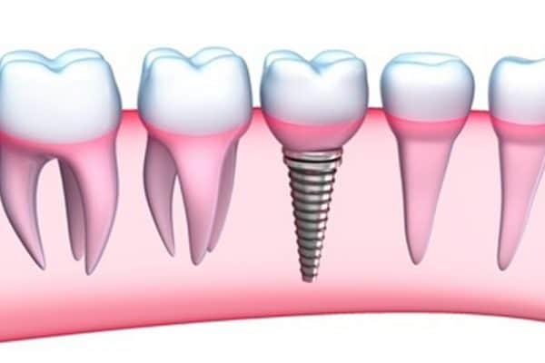 Dental implant Dentist in Denver