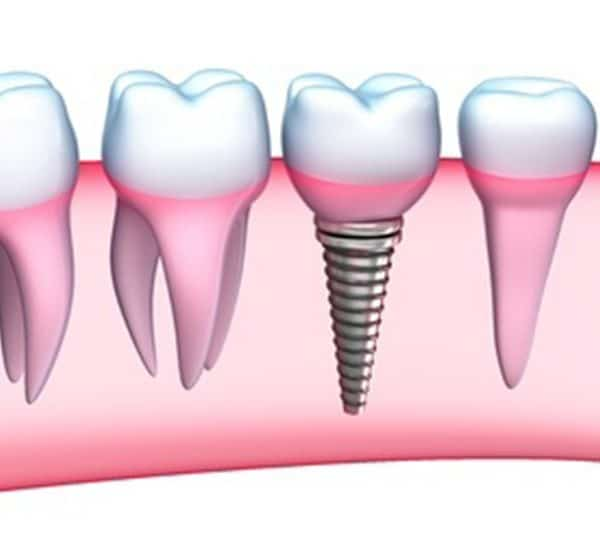 Dental implant Dentist in Denver