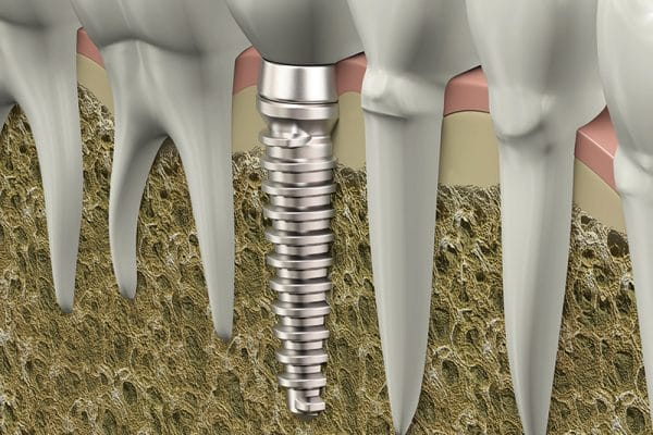Who does dental implants